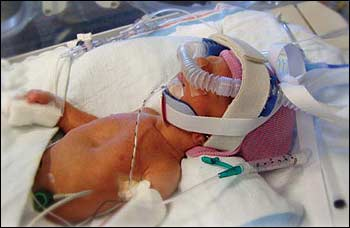 the causes and effects of premature birth among babies Health effects premature births and the  it is the leading cause of death among newborn babies  there are some risk factors associated with preterm birth:.