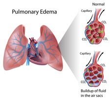 Diagram of Pulmonary Edema.