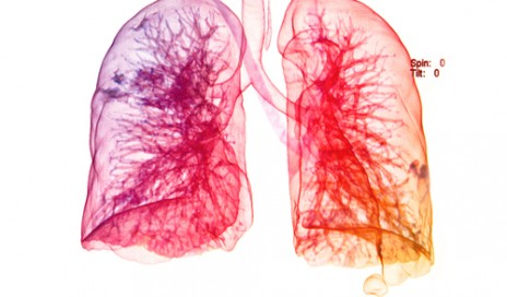 New treatment for acute respiratory distress syndrome