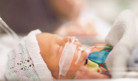 Premature newborn receives ventilator support