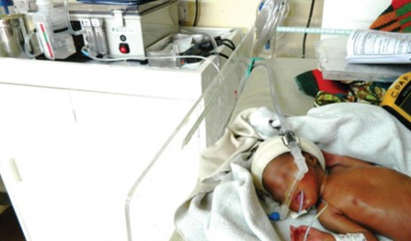 Malawian newborn using Pumani bubble CPAP device