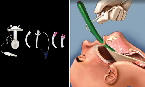 Airway management products