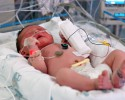 http://www.dreamstime.com/stock-photo-infant-nicu-image1483660