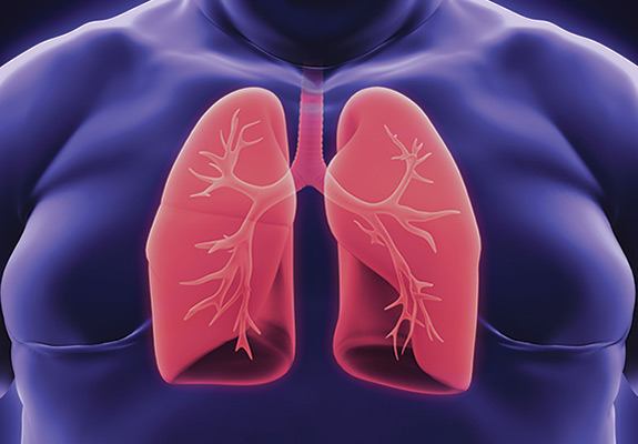 lungs-3d-obese-575